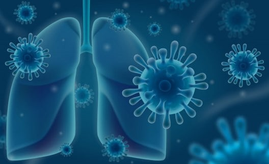Causes of Pneumonia